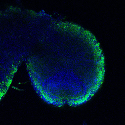 A larval brain lobe, neural precursor cells are shown in green, and blue is a counterstain.