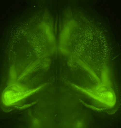 CUBIC-treated mouse brain
