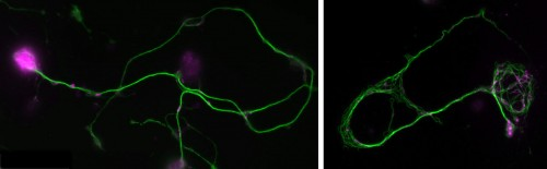 Normal and mutant primary Drosophila neurons in culture.