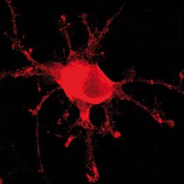 oligodendrocyteJCS