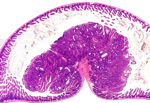 Polypoid adenoma in the small intestine of an apc mutant mouse