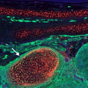 Reprogrammed trunk neural crest cells acquire the ability to form cartilage. The image shows a cross section of a chimeric embryo in which trunk neural crest cells (green) differentiated into ectopic cartilage nodules (arrow) in the craniofacial region.