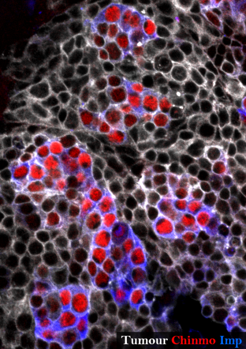 Neural stem cell tumour in the Drosophila adult central nervous system stained for GFP (grey), Chinmo (red) and Imp (blue). The tumour is composed of an heterogenous cell population.