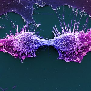 Two purple HeLa cells in the process of dividing