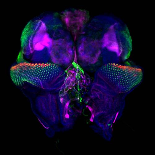 Drosophila eye discs and brain lobes by Tonatiuh Molina Villa